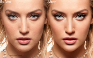 26-skin-photo-retouching-after-before.preview